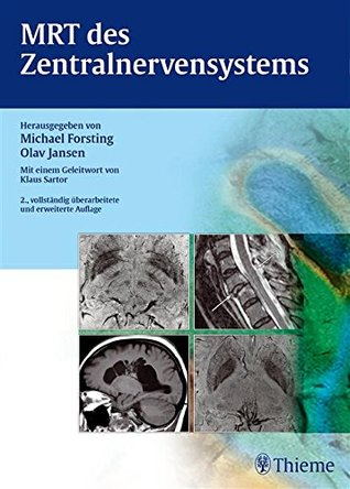 MRT des Zentralnervensystems  by  Michael Forsting