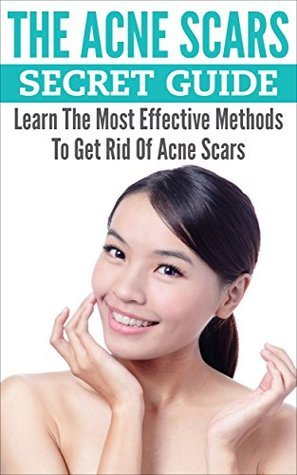 The Acne Scars Secret Guide: Learn The Most Effective Methods To Get Rid Of Acne Scars (Acne Treatments, Acne Cure, Acne Remedy Book 1) Russel Hobbs