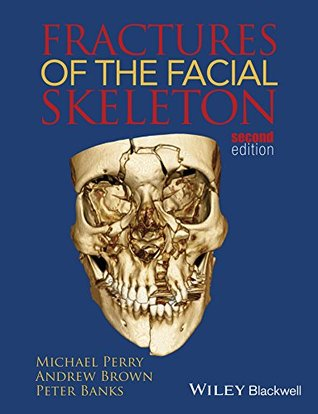 Fractures of the Facial Skeleton Michael Perry