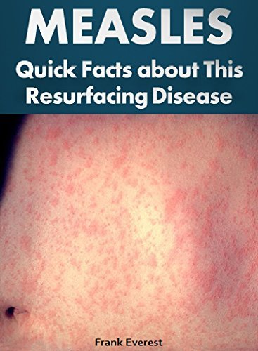 MEASLES: Quick Facts about This Resurfacing Disease (Illnesses, Disorders, and Diseases That Afflict the World Book 2)  by  Frank Everest