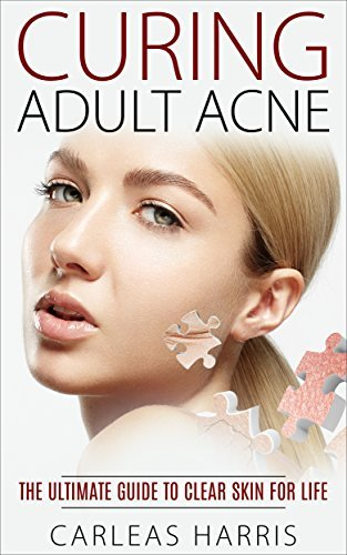 Curing Adult Acne: The Ultimate Guide to Clear Skin For Life  by  Carleas Harris