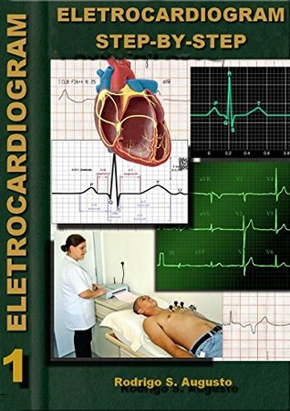 Electrocardiogram: Step-by-step  by  Rodrigo Souza Augusto