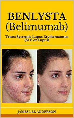 BENLYSTA (Belimumab): Treats Systemic Lupus Erythematosus  by  James Lee Anderson