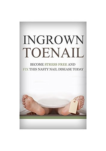Ingrown Toenail: How To Become Stress Free And Easily Cure This Nasty Nail Disease Today From The Comfort Of Your Own Home  by  Robin E. Warren