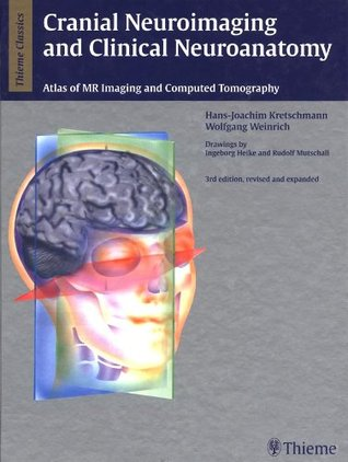 Cranial Neuroimaging and Clinical Neuroanatomy: Magnetic Resonance Imaging Andcomputed Tomography Hans-Joachim Kretschmann