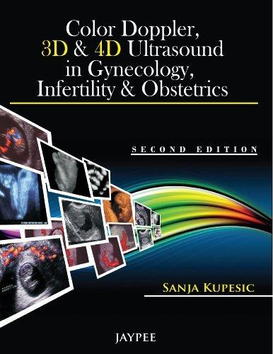 Color Doppler, 3D and 4D Ultrasound in Gynecology, Infertility and Obstetrics  by  Sanja Kupesic Plavsic