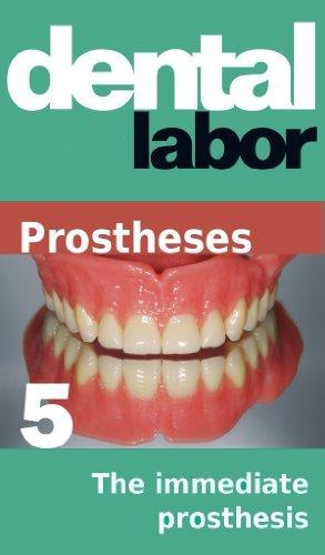 The immediate prosthesis (dental lab technology articles Book 24) Tobias Schwemmer