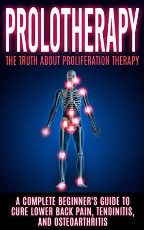Prolotherapy: The Truth About Proliferation Therapy: A Complete Beginners Guide to Cure Lower Back Pain, Tendinitis, And Osteoarthritis Arnold Hendrix