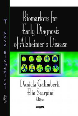 Biomarkers for Early Diagnosis of Alzheimers Disease  by  Daniela Galimberti