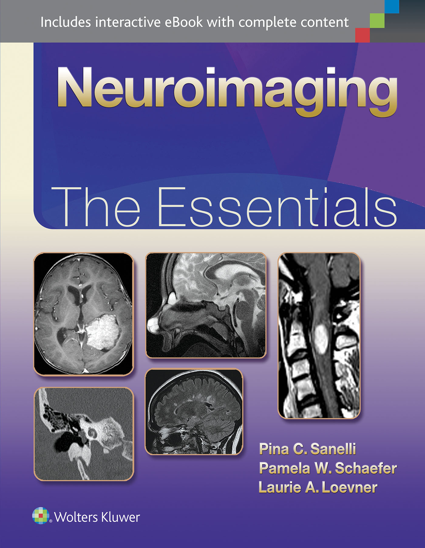 Neuroimaging: The Essentials  by  Pina Sanelli