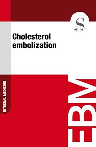 Cholesterol Embolization Sics Editore