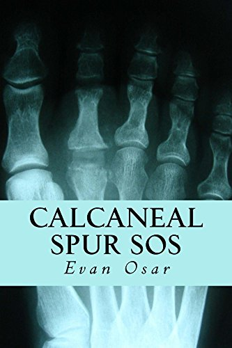 Calcaneal Spur SOS: How to Treat A Calcaneal Spur Naturally and Get Quick Relief from Foot Pain  by  Evan Osar