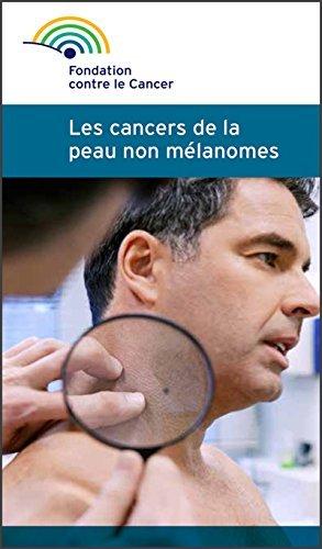 Les cancers de la peau non mélanomes: Fondation contre le Cancer Fondation contre le cancer