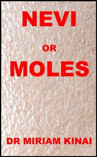 Dermatology: Nevi or Moles (Skin Diseases Book 45) Dr Miriam Kinai
