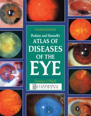 Perkins and Hansells Atlas of Diseases of the Eye Damian ONeill