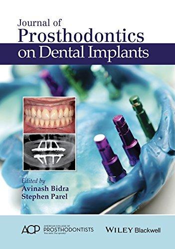 Journal of Prosthodontics on Dental Implants  by  Stephen M Parel