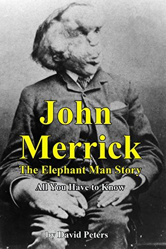 John Merrick: The Elephant Man Story: All You Have to Know  by  David Peters