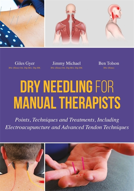 Dry Needling for Manual Therapists: Points, Techniques and Treatments, Including Electroacupuncture and Advanced Tendon Techniques Gyer Giles Michael J