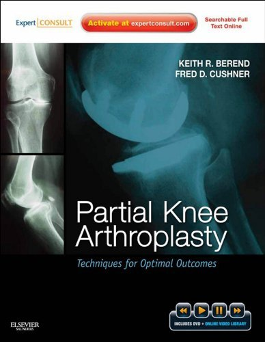 Partial Knee Arthroplasty: Techniques and Optimal Outcomes - Expert Consult Keith R. Berend
