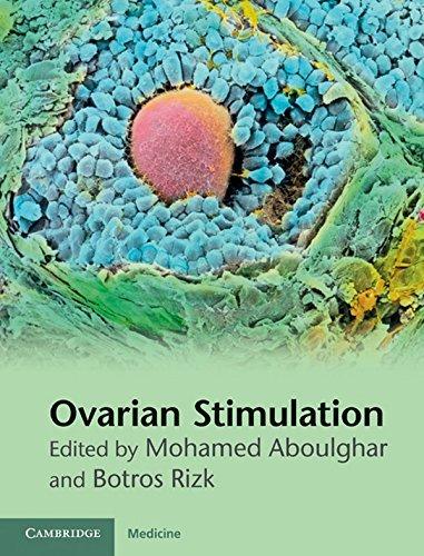 Ovarian Stimulation Mohamed Aboulghar