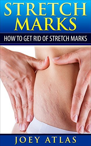 Stretch Marks: How to Get Rid of Stretch Marks Jason White