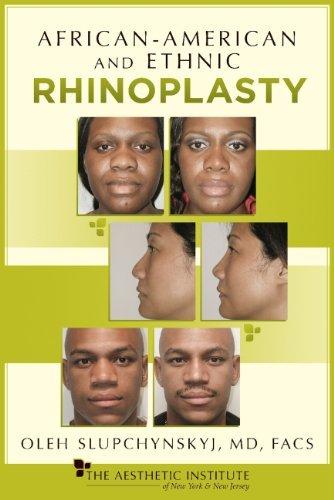 African-American and Ethnic Rhinoplasty  by  Oleh Slupchynskyj