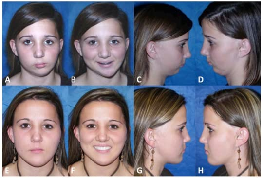 example of hemifacial microsomia